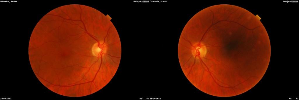 Retinal Photograph